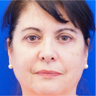 55-64 year old woman treated with Eyelid Surgery after 3678764