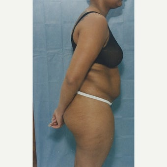 50 year old woman treated with Liposuction of her Abdomen before 1663334