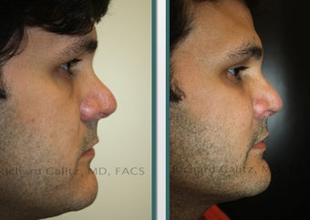 Cheek Implants before 1065305