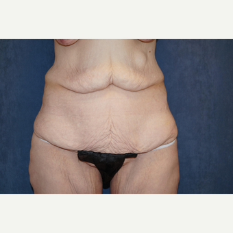 35-44 year old woman treated with Body Lift before 3703594