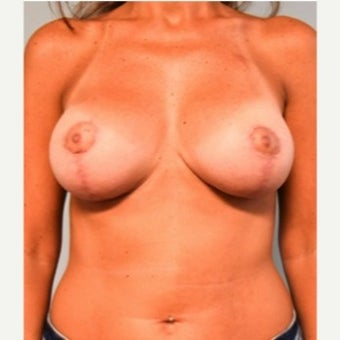 35-44 year old woman treated with Breast Lift with Implants after 2019116