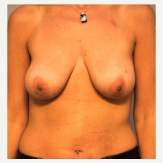 35-44 year old woman treated with Breast Lift with Implants before 2019116