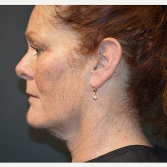 Woman post 3 Kybella treatments before 2221640