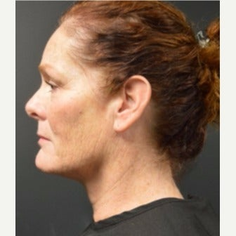 Woman post 3 Kybella treatments after 2221640