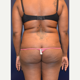 25-34 year old woman treated with Brazilian Butt Lift before 3344232