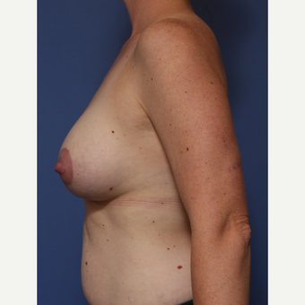 25-34 year old woman treated with Breast Lift with Implants after 3782977