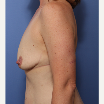25-34 year old woman treated with Breast Lift with Implants before 3782977