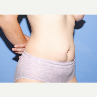 25-34 year old woman treated with Tummy Tuck before 3763310