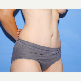 25-34 year old woman treated with Tummy Tuck after 3763310