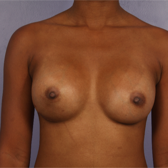 25-34 year old woman treated with Breast Reconstruction after 3226971