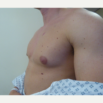 18-24 year old man treated with Male Breast Reduction before 3501859