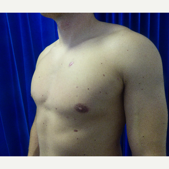 18-24 year old man treated with Male Breast Reduction after 3501859