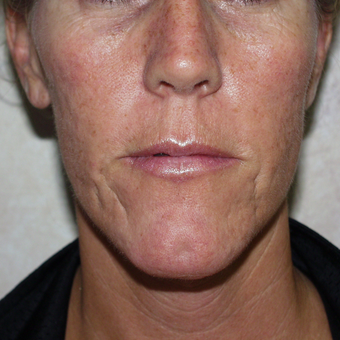45-54 year old woman treated with Acne Scars Treatment before 3400397