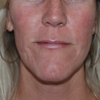 45-54 year old woman treated with Acne Scars Treatment after 3400397