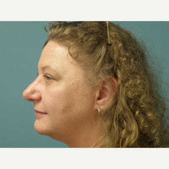 35-44 year old woman treated with Rhinoplasty after 3035092