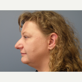 35-44 year old woman treated with Rhinoplasty before 3035092