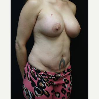 37 year old woman treated with Tummy Tuck after 3076610