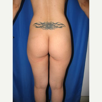 25-34 year old woman treated for Butt Augmentation with Implants before 1852047