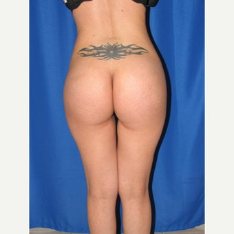 25-34 year old woman treated for Butt Augmentation with Implants after 1852047