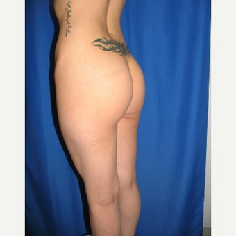 25-34 year old woman treated for Butt Augmentation with Implants 1852047