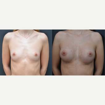 18-24 year old woman treated with Breast Augmentation before 3238749