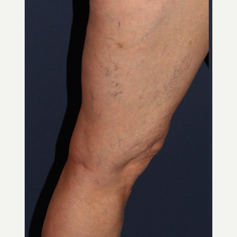 45-54 year old woman treated with Sclerotherapy before 3244671