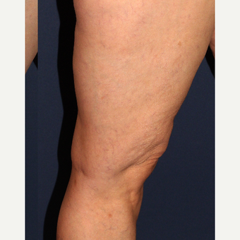 45-54 year old woman treated with Sclerotherapy after 3244671