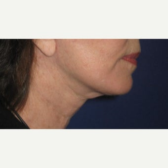53 year old woman treated with Neck Lift after 1832779