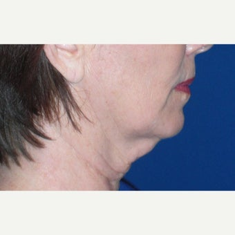 53 year old woman treated with Neck Lift before 1832779