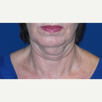 53 year old woman treated with Neck Lift 1832779