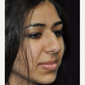 Rhinoplasty before 3148715