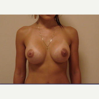 25-34 year old woman treated with Breast Augmentation after 3841752