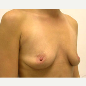 Breast Augmentation before 3681123