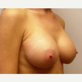 Breast Augmentation after 3681123
