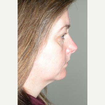 45-54 year old woman treated with Facelift before 3154202