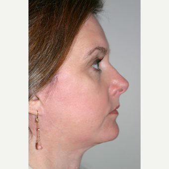 45-54 year old woman treated with Facelift after 3154202