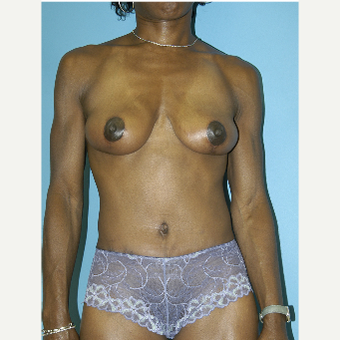 25-34 year old woman treated with Mommy Makeover after 3281850