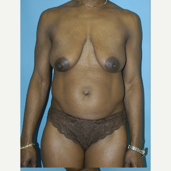 25-34 year old woman treated with Mommy Makeover before 3281850