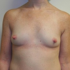 18-24 year old woman treated with Breast Augmentation before 3131733