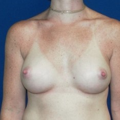 18-24 year old woman treated with Breast Augmentation after 3131733