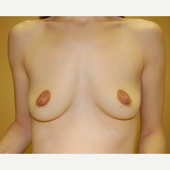 35-44 year old woman treated with Breast Augmentation before 3603149