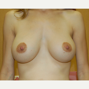 35-44 year old woman treated with Breast Augmentation after 3603149