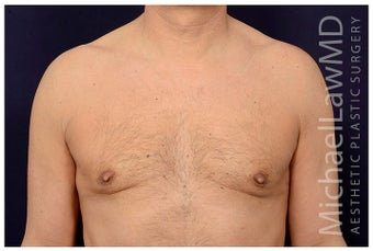 55-64 year old man treated with Male Breast Reduction