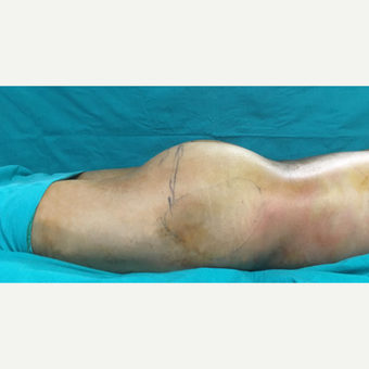 25-34 year old woman treated with Butt Implants and fat injection before 3527973