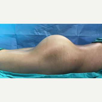 25-34 year old woman treated with Butt Implants and fat injection after 3527973
