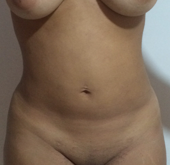 29 year old woman reacently treated with Liposuction + Dominican Butt Lift (DBl) before 3853754