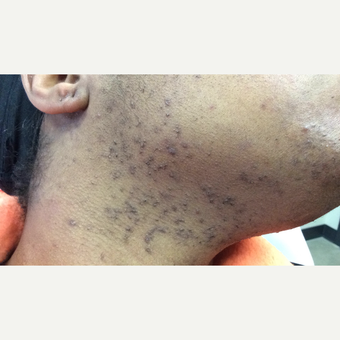 55-64 year old woman treated with Laser Hair Removal Nd:Yag