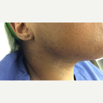 55-64 year old woman treated with Laser Hair Removal Nd:Yag after 2869747