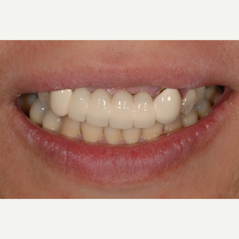 55-64 year old woman treated with Dental Crown before 3551047