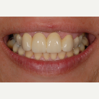55-64 year old woman treated with Dental Crown after 3551047